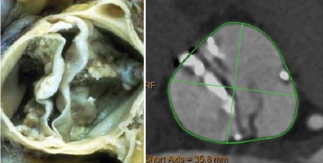 Similar Mortality, Higher Early Stroke Risks in TAVR for Bicuspid Aortic Stenosis