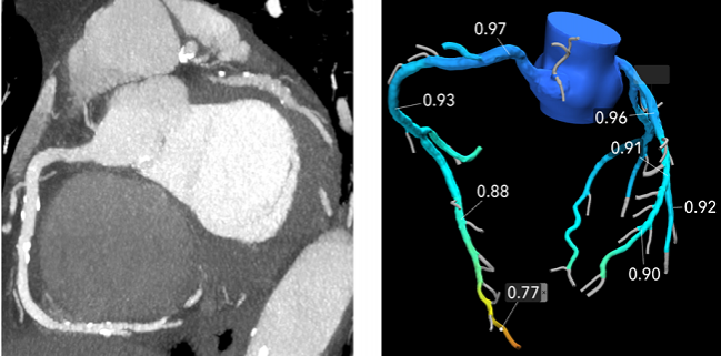 Rapid-Access CT Model Seeks to Increase Efficiency, Reduce Delays for Chest Pain