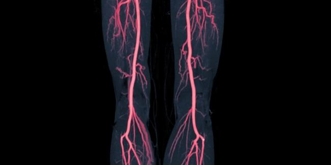 DCB Match DES Through 1 Year in Femoropopliteal Lesions, DRASTICO Affirms