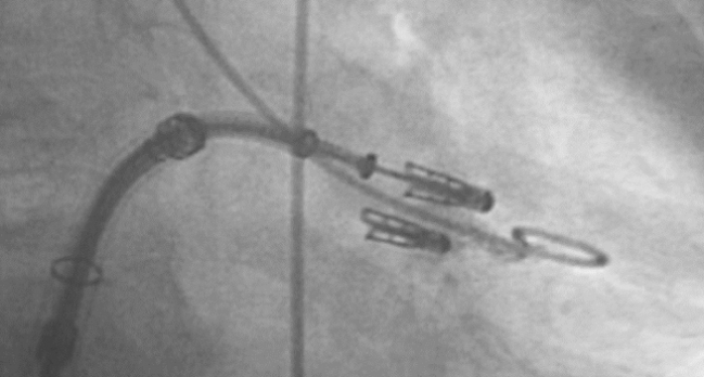 Better Outcomes, Fewer Complications Among Higher-Volume MitraClip Sites