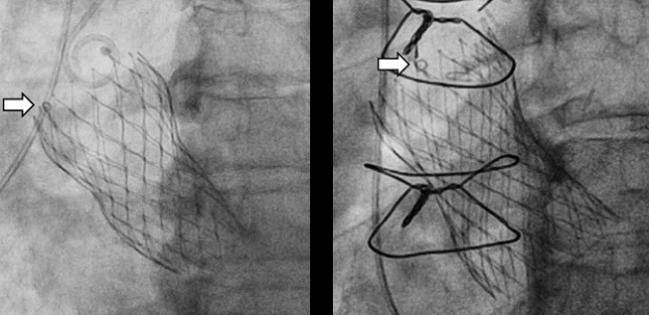 Evolut Valves: Initial Positioning Can Be Optimized for Future Coronary Access