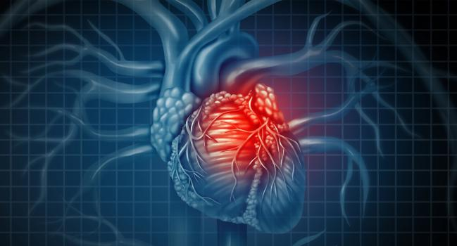 New 'Chronic Coronary Syndrome' Guidelines Stress There's Nothing Stable About CAD