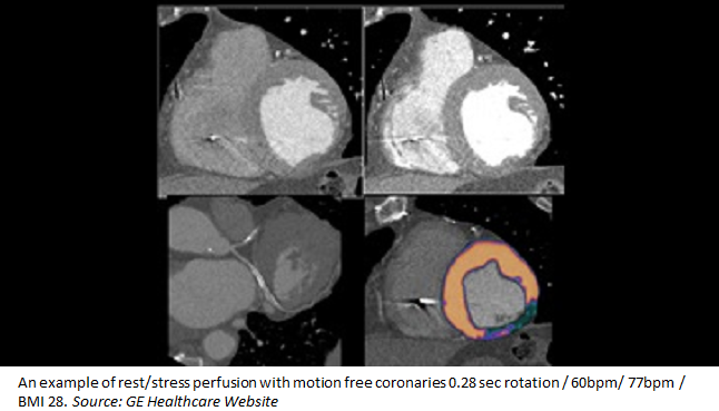 CT Perfusion Imaging for In-Stent Restenosis Shows Promise