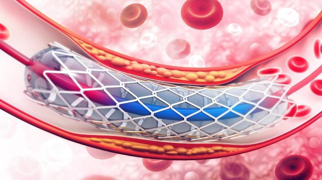 More Acute Stent Thrombosis With Synergy Stent in Bern PCI Registry
