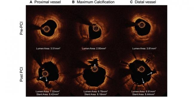 Intravascular Lithotripsy Shows Good Safety at 30 Days: DISRUPT CAD II