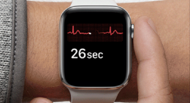 Apple Watch as an ECG? Feasible, May Prove Useful in Emergencies