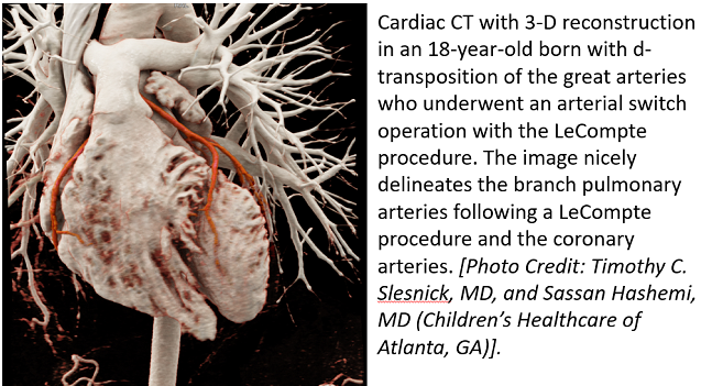 New AUC for Cardiac Imaging Follow-up in Congenital Heart Disease