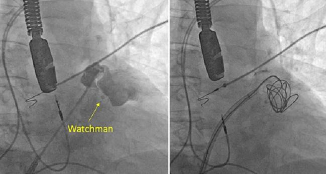 Embolization Coils May Be an Option for Leaks After LAA Occlusion