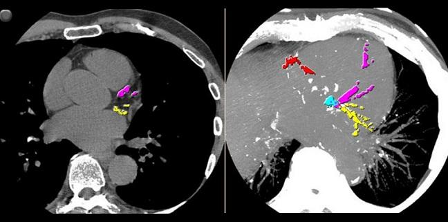 'Super-Dense' Calcified Plaque Appears Protective Against ACS