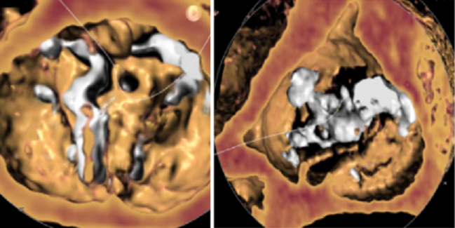 Positive Early Data for TAVR in Low-Risk Patients With Bicuspid Valves