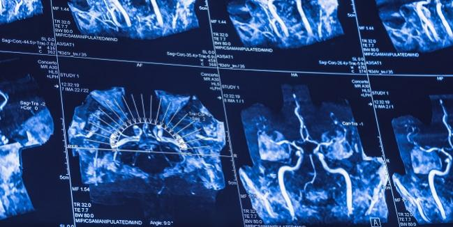 Combo of Proximal Protection, Double-Layer Stent May Enhance Carotid Stenting