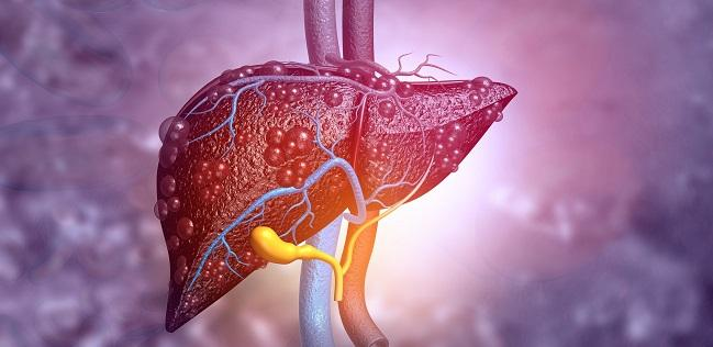 Cirrhosis Tied to Poor Outcomes in the Months After PCI
