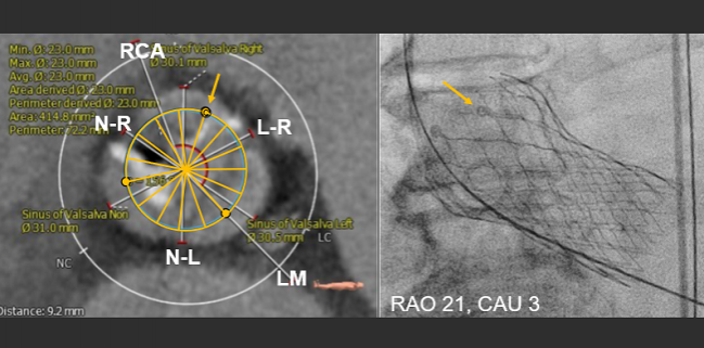 Preventing TAVR Obstruction of Coronary Arteries Remains a Challenge