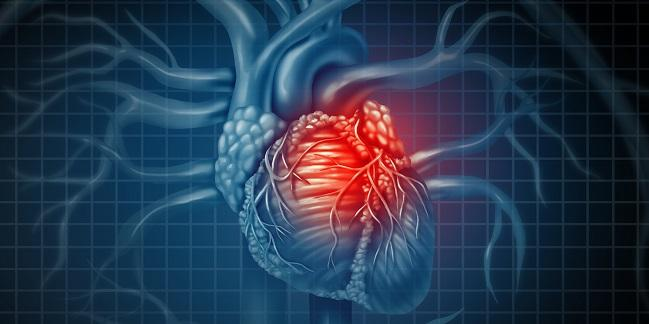 No 'Obesity Paradox': BMI and Infarct Size Not Linked in STEMI
