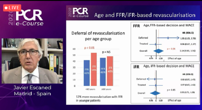 Age May Impact Outcomes After PCI Choices Guided by FFR but Not iFR