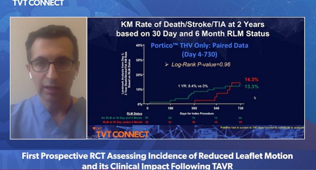 Reduced Leaflet Motion After TAVR: No Link to Impaired Hemodynamics, Events
