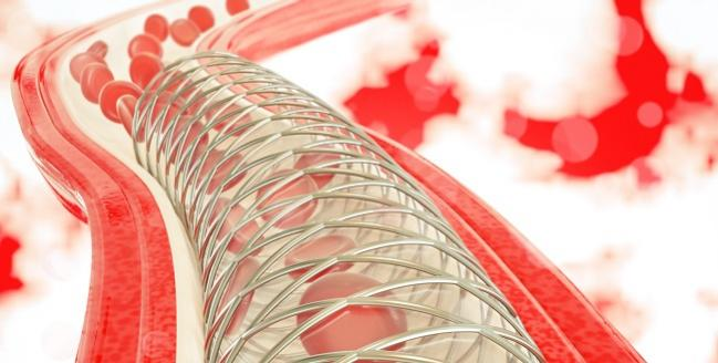 Stent Thrombosis May Be Presenting Feature of COVID-19