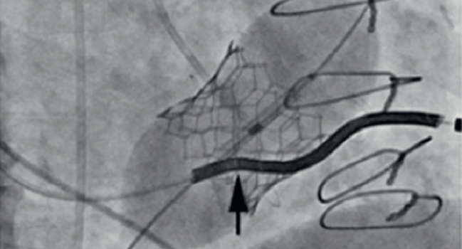 When a Pacemaker Lead Complicates Transcatheter Tricuspid Replacement: New Insights