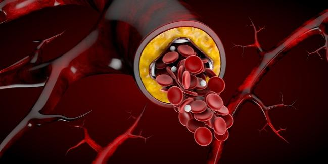 In-Stent Restenosis Accounts for 10% of All PCIs, Contemporary National Analysis Shows