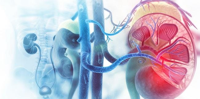 Treating Accessory Arteries May Be Important in Renal Denervation