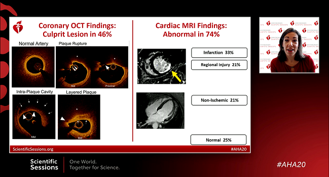 OCT and MRI Find an MI Cause in 85% of Women With MINOCA: HARP
