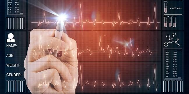 Machine Learning Based on ECG, Clinical Data Predicts Coronary Calcium