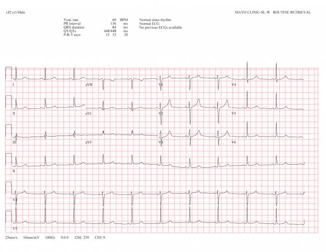 Machine Learning 'Sniffs' Out Long QT Otherwise Unseen on ECG
