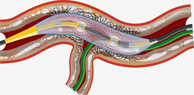 FDA Approves Shockwave Intravascular Lithotripsy for Calcified Coronaries