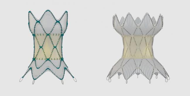 FDA Approves Harmony TPV for Pulmonary-Valve Regurgitation in Congenital HD