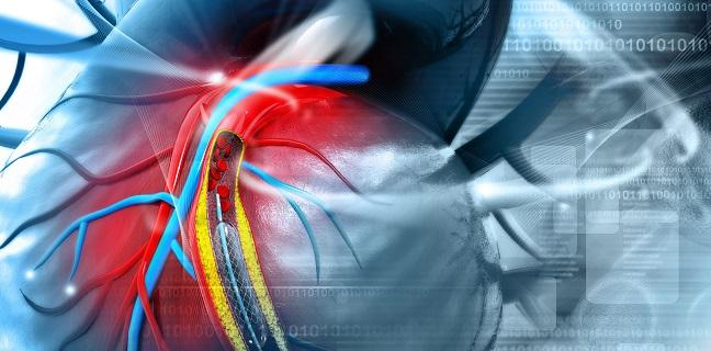 No Harm, No Help With Bioabsorbable-Polymer Stents: Registry