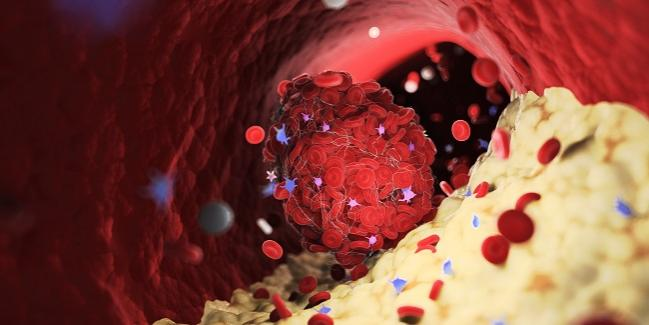 New Antithrombotic Revacept Fails to Reduce Myocardial Injury in PCI