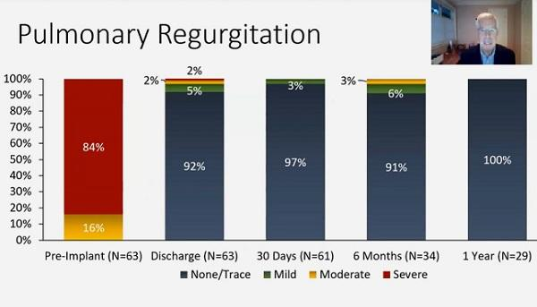 Harmony TPV Continues to Reduce Pulmonary Valve Regurgitation at 1 Year