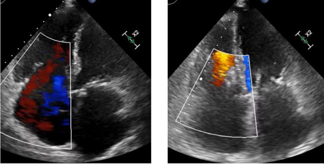 Pascal Device Works Well for Tricuspid Regurgitation in Commercial Market