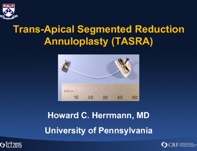 MitraSpan Transapical Segmented Reduction Annuloplasty (TASRA): Rationale and FIM Results