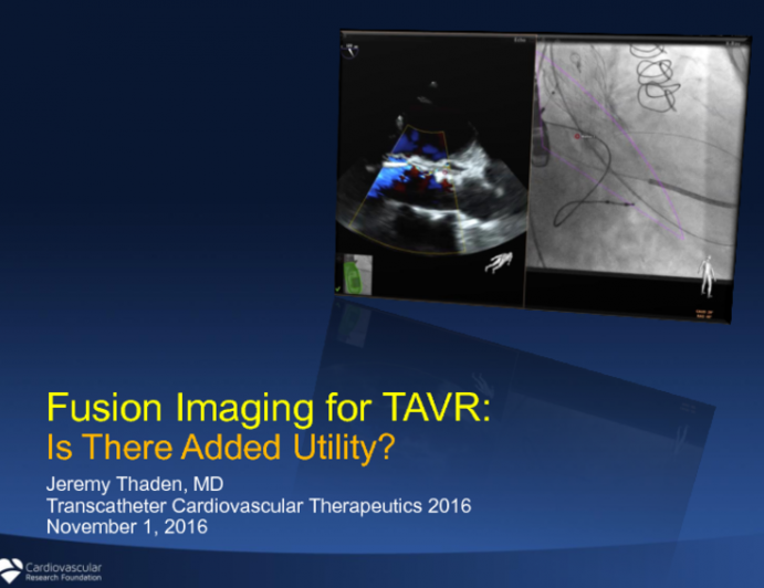 Fusion Imaging for TAVR: Is There Added Utility?