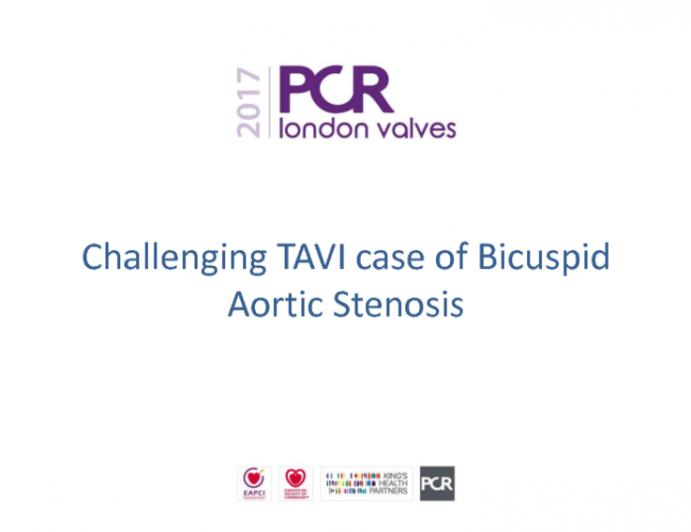Challenging TAVI Case of Bicuspid Aortic Stenosis