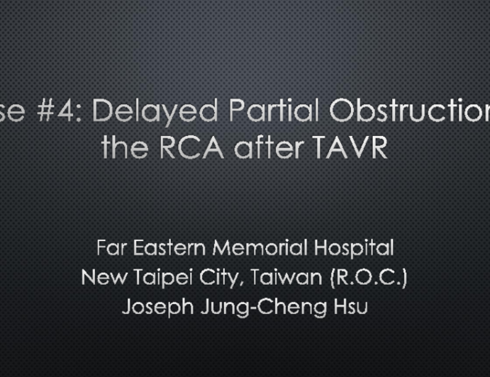 Case #4: Delayed Partial Obstruction of the RCA After TAVR