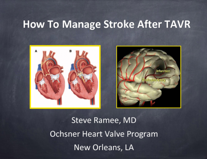 How to… Manage a Stroke After TAVR
