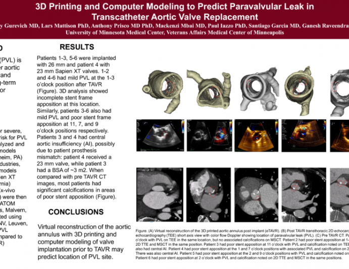 3D Printing and Computer Modeling to Predict Paravalvular Leak in Transcatheter Aortic Valve Replacement