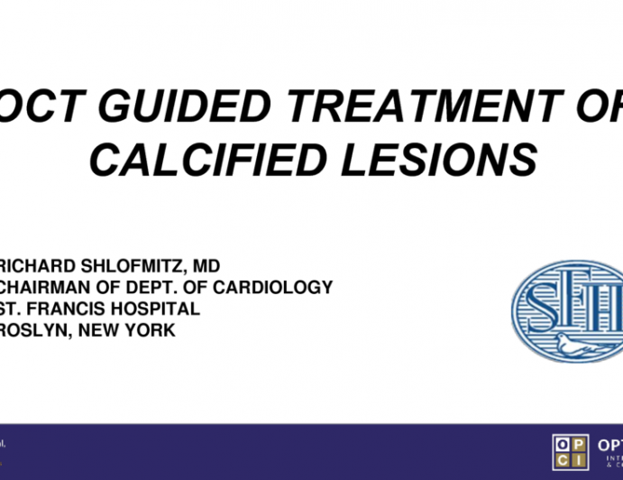 OCT Guided Treatment of Calcified Lesions