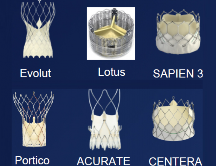 """Modern """"Era"""" TAVR with Optimal Technology and Techniques"""