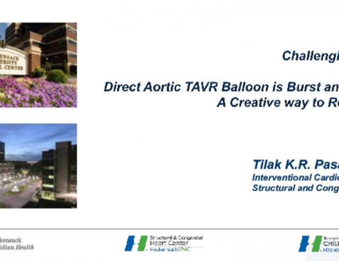 Direct Aortic TAVR Balloon Burst and Stuck! A Creative Way to Retrieve It