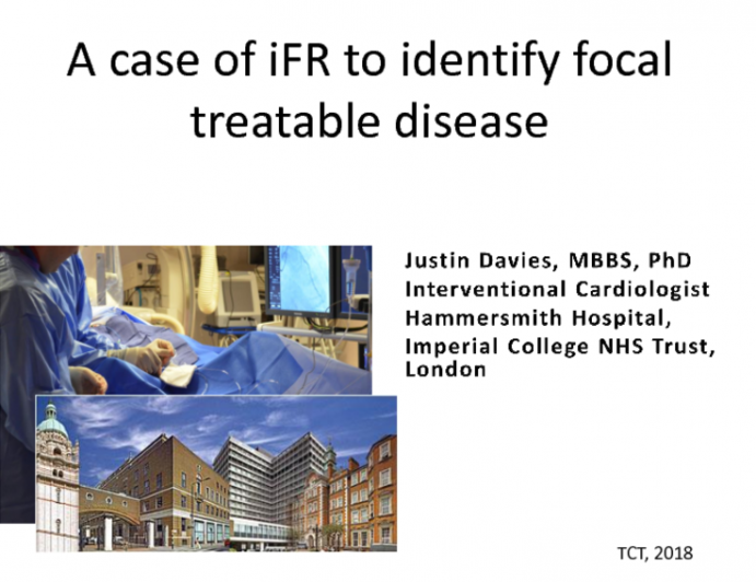 Case #5: A Case of iFR Co-Registration To Identify Focal Treatable Disease