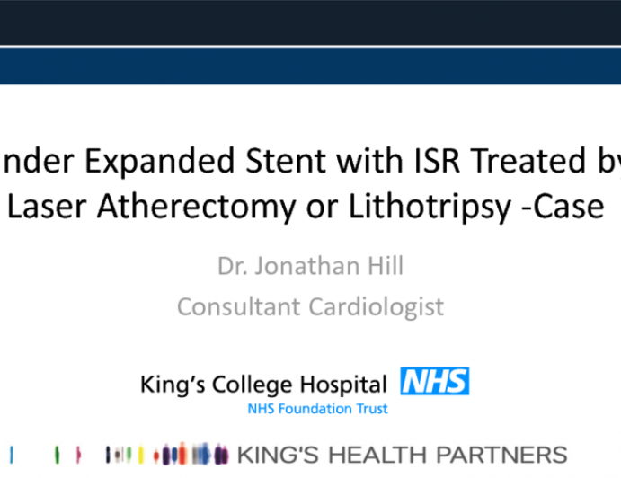 Case #9: Under-Expanded Stent with ISR Treated by Laser, Atherectomy, or Lithotripsy