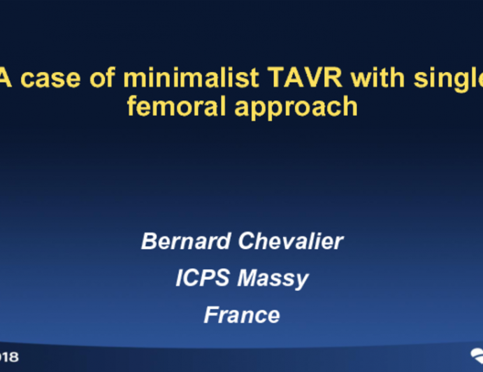 Case #4: A Case of Minimalist TAVR With Single Femoral Access