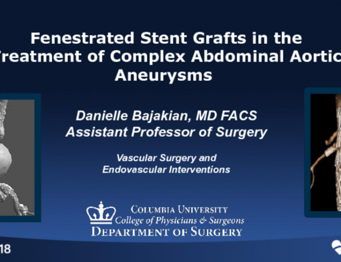 Fenestrated Stent Grafts in the Treatment of Complex Abdominal Aortic Aneurysms