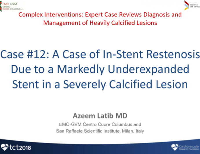 Case #12: A Case of In-Stent Restenosis Due to a Markedly Under-expanded Stent in a Severely Calcified Lesion