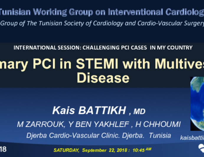 Introduction: A Patient With STEMI and Multivessel Disease