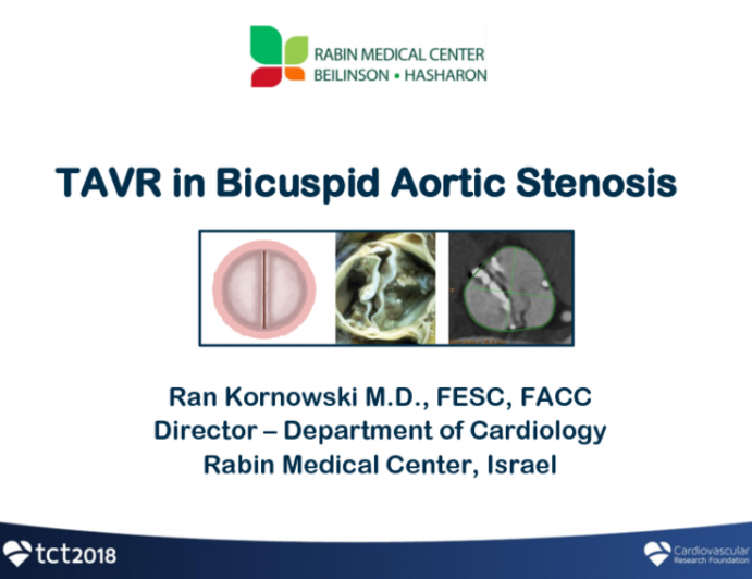 Bicuspid Aortic Stenosis: How To Treat