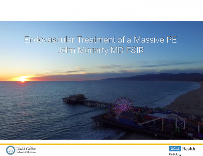 Case Presentation: Endovascular Treatment of a Massive Pulmonary Embolism